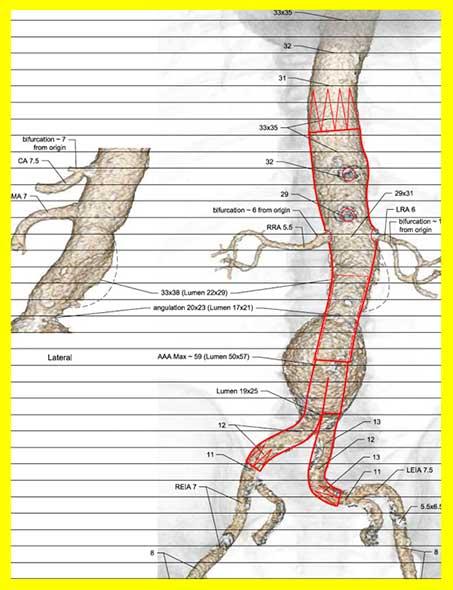 Planungsskizze einer 4fach fenestrierten Aortenprothese