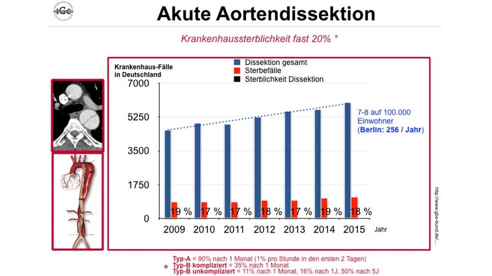 Aortendissektion Häufigkeit und Sterblichkeit