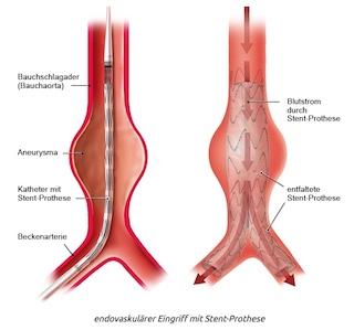 Bauchaortenaneurysma Stentgraft