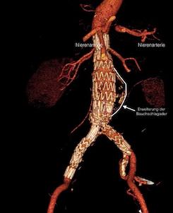 Bauchaortenaneurysma Stentbehandlung