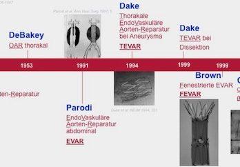 bauchaortenaneurysma-geschichtliches
