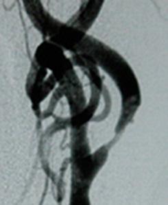 Carotis-Stenose