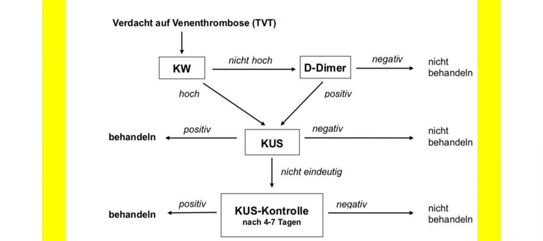 Phlebothrombose-Diagnostischer-Algorithmus