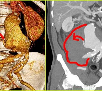 Bauchaortenaneurysma mit Ruptur und aktivem Blutaustritt