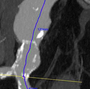 Bauchaortenaneurysma Centerline-Messung