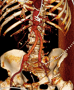 Bauchaortenaneurysma Gefäßchirurigie durch Y-Prothese
