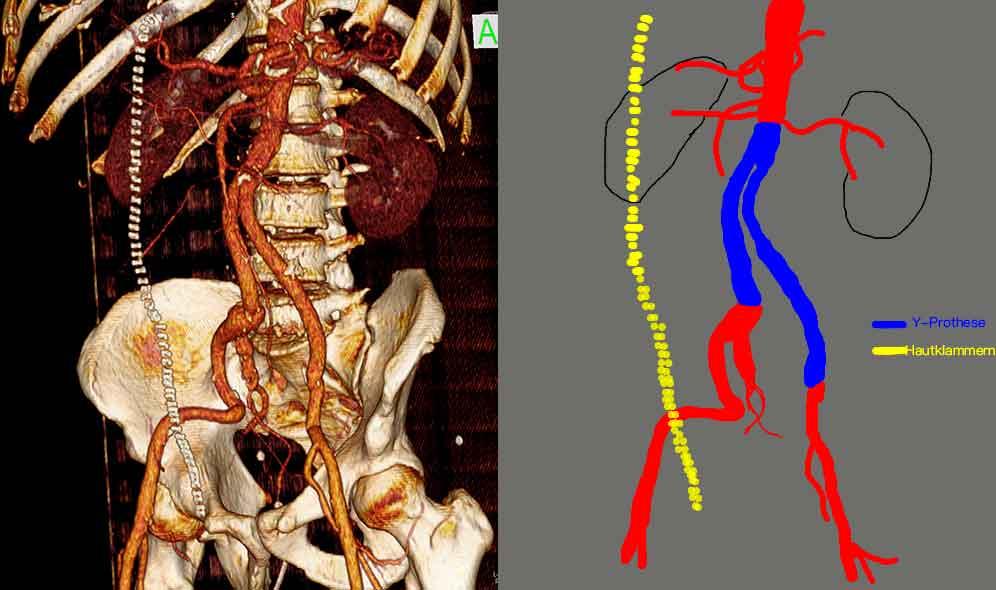 Bauchaortenaneurysma Ruptur Y-Prothese