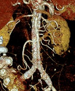 Bauchaortenaneurysma rupturiert EVAR CT-Kontrolle