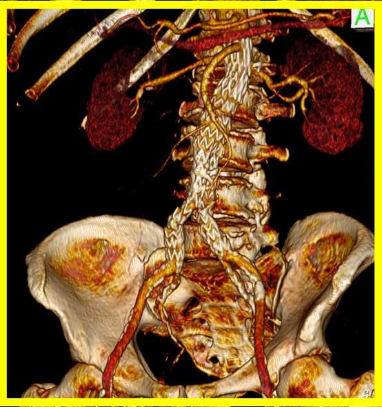 EVAR aortobiiliakal