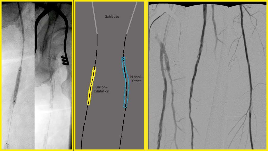 pAVK Hybrideingriff durch Profundaplastik, PTA und Stent der A. femoralis superficialis