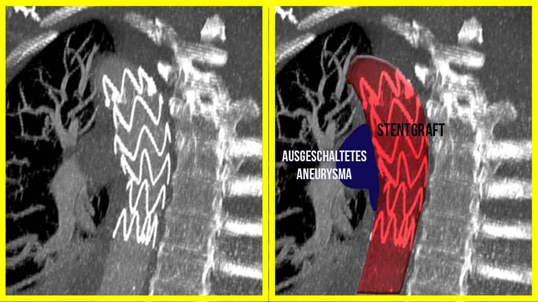 CT nach TEVAR zur Behandlung eines sackförmigen Aneurysma der Brustschlagader