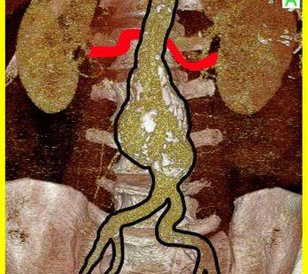 Bauchaortenaneurysma mit einem konischen Hals infrarenal