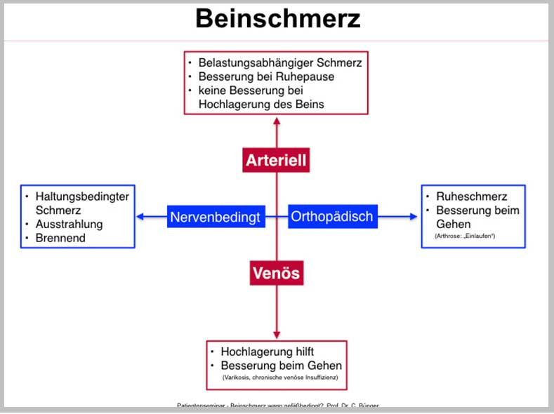 Beinschmerz-Symptome
