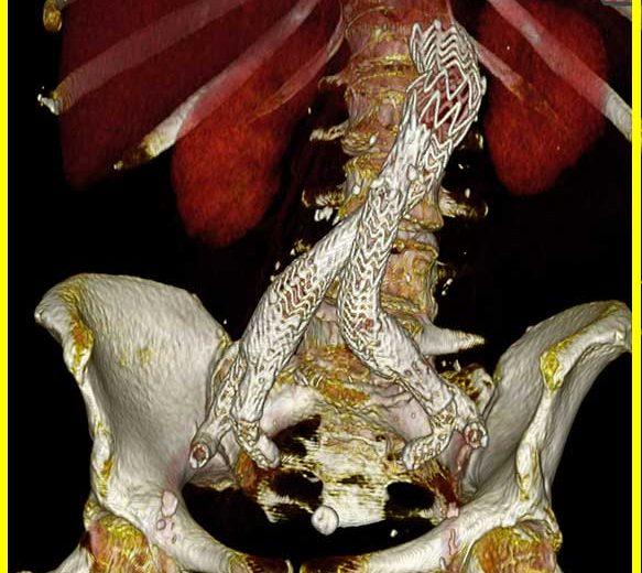 Rupturiertes-Bauchaortenaneurysma-EVAR-und-IBD