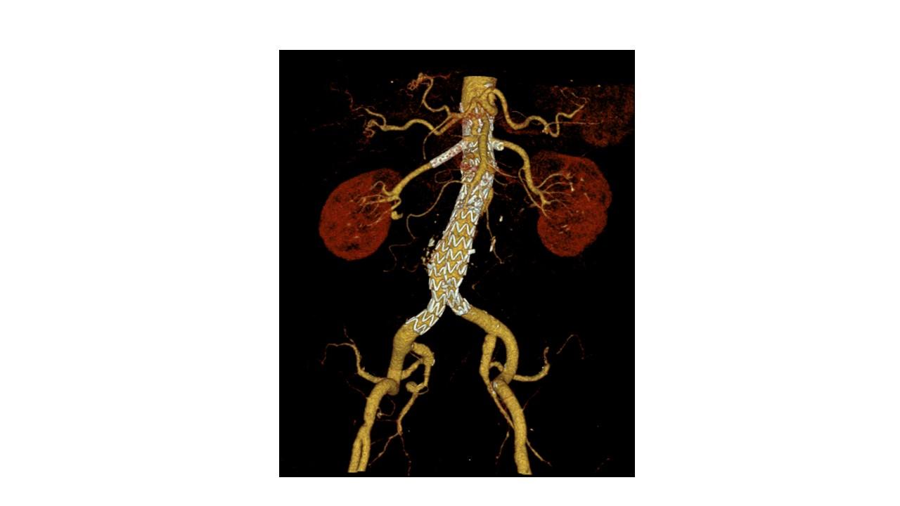 Bauchaortenaneurysma Chimney EVAR